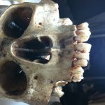 Oberschädel Zähne SFX Skelett Rechtsmedizin