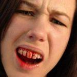 Zahnschmerzen SFX Maskenbildner Kaputter Schneidezahn
