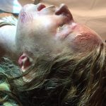 Schürfwunden im Gesicht ausgewaschen Wasserleiche Mädchen Spezialeffekt SFX