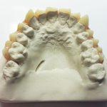 Zahnverblendung Zähne SFX Maskenbildner movieSFX