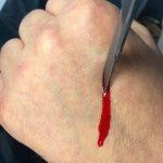 SFX Skalpell FX mit Blutaustritt