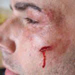 Schnitt Wange Geschwollenes Auge SFX MaskeSFX Make-up Artist