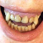 Schlechte Zähne Gebiss SFX Dental Effekte