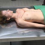 Rechtsmedizin Leiche Sektionsschnitt Y-Cut
