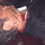 Scherbe steckt im Hals, SFX mit Blutaustritt movieSFX Halswunde SFX Maskenbild München