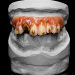 SFX Zähne, SFX Teeth , Filmeffekte, Dental Effekte Rotten, ungepflegte Zähne,movieSFX