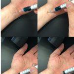 SFX Spritze mit versenkbarer Nadel und Effekt zum Blut abzapfen oder Injektion verabreichen movieSFX Film TV Effekte